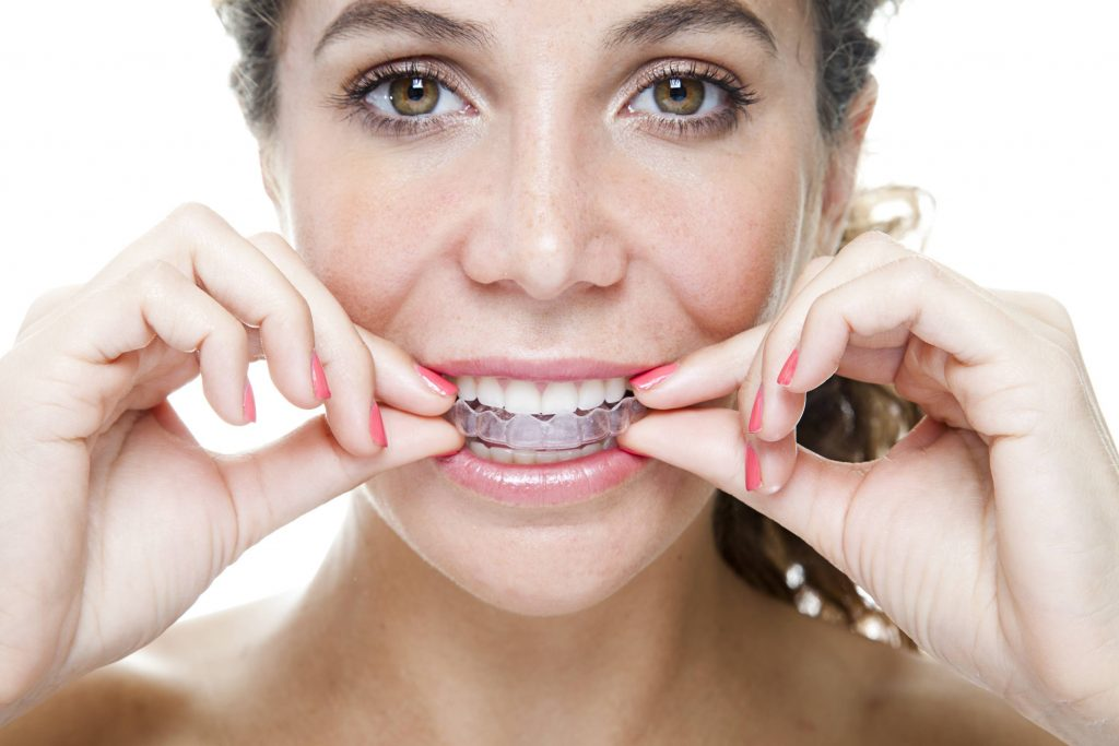 photo of woman wearing Invisalign