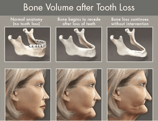 Bone Volume After Tooth Loss Illustration