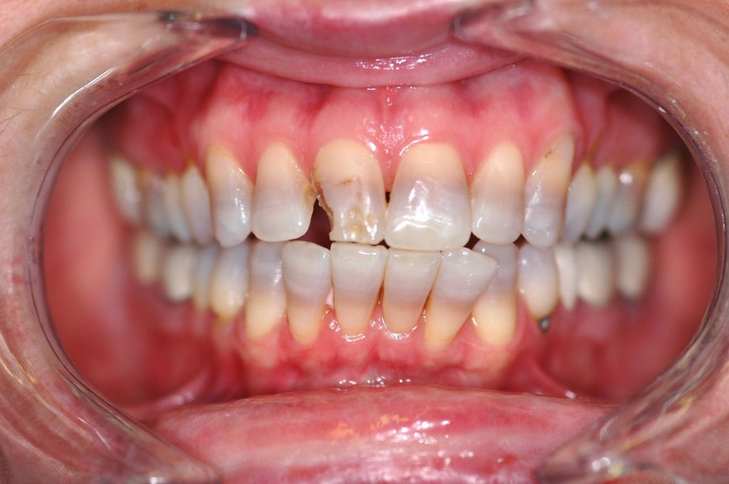 Closeup of teeth damaged from decay