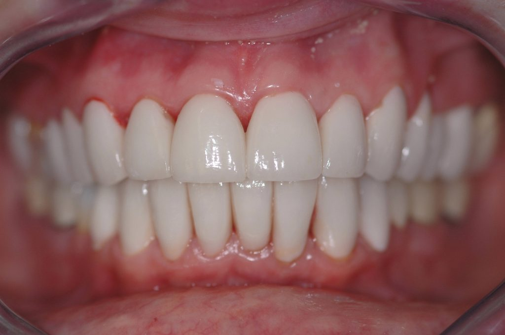 Closeup of teeth with crowns